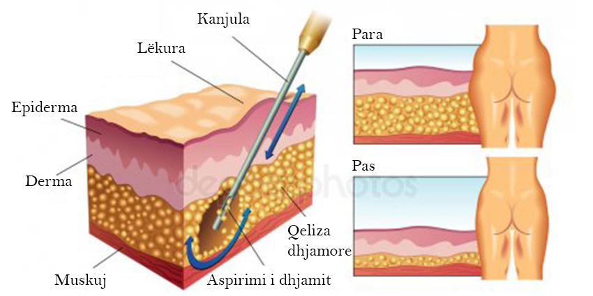 Si realizohet liposucioni dhe cfarë qëllimi?