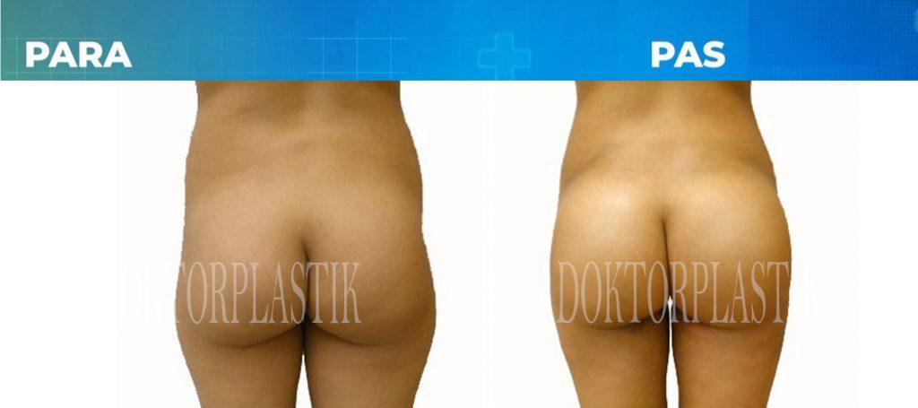 Rimodelimi i vitheve me Liposucion