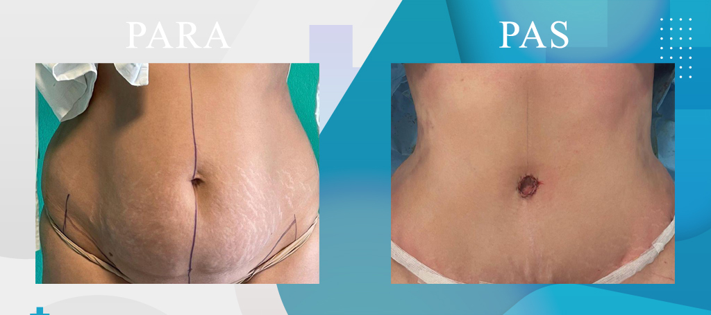 Abdominoplastika, Rimodelimi i Barkut - Abdominoplasty - Addominoplastica - DaVinci