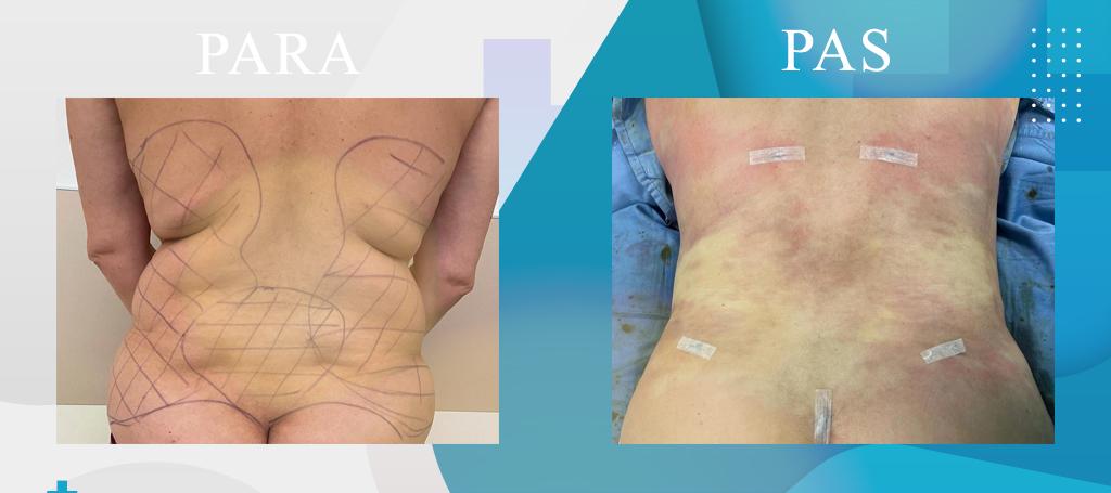 Liposucion, Eleminimi i dhjamit - Liposuction - Liposuzione - Klinika DaVinci