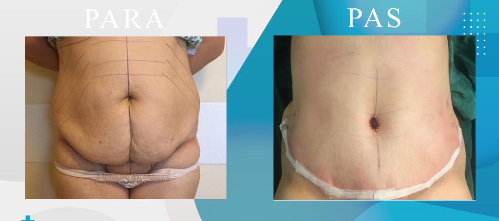 Abdominoplastika, Rimodelimi i barkut - Abdominoplasty - Addominoplastica - Klinika DaVINCI