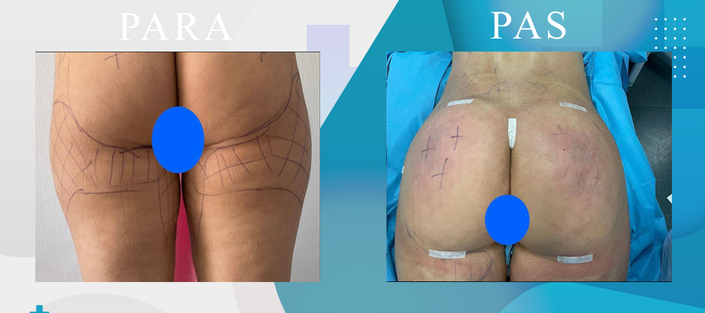 Rimodelim i vitheve. Liposucion - Buttock Lifting - Gluteoplastica - Klinika DaVINCI