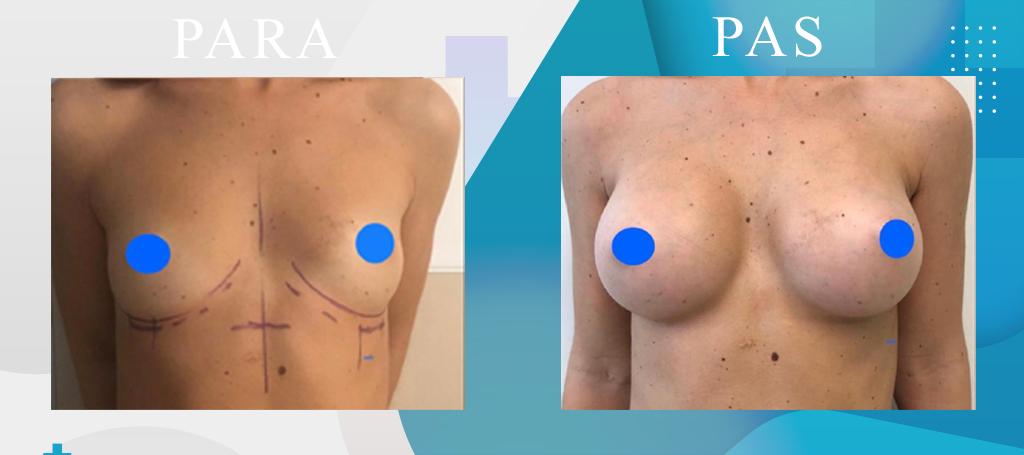 Zmadhimi i gjoksit - Breast Augmentation - Mastoplastica Additiva - Klinika DaVINCI