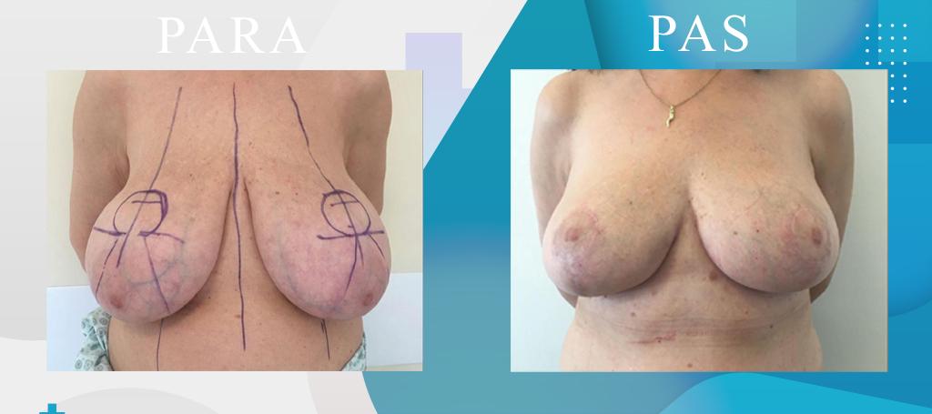Zvogelimi i gjoksit - Breast Reduction - Mastoplastica Riduttiva - Klinika DaVinci